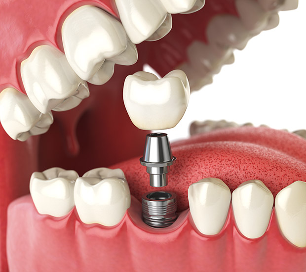 Palm Beach Gardens Will I Need a Bone Graft for Dental Implants
